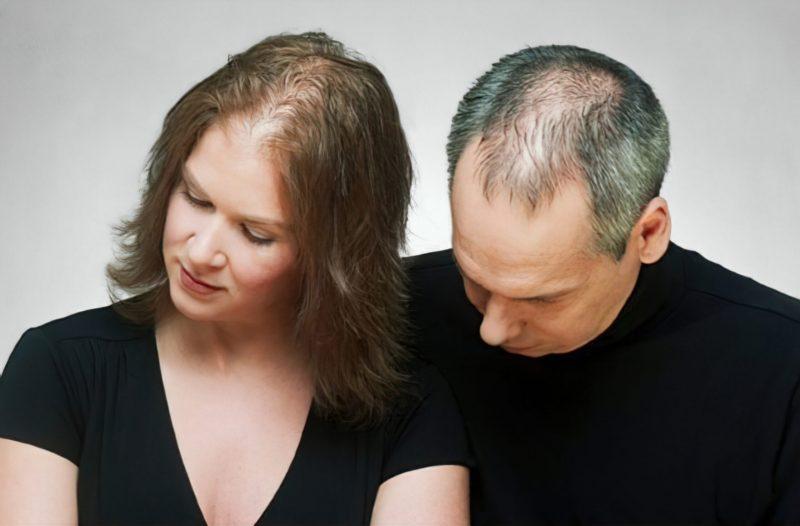 Producto para la caída de cabello